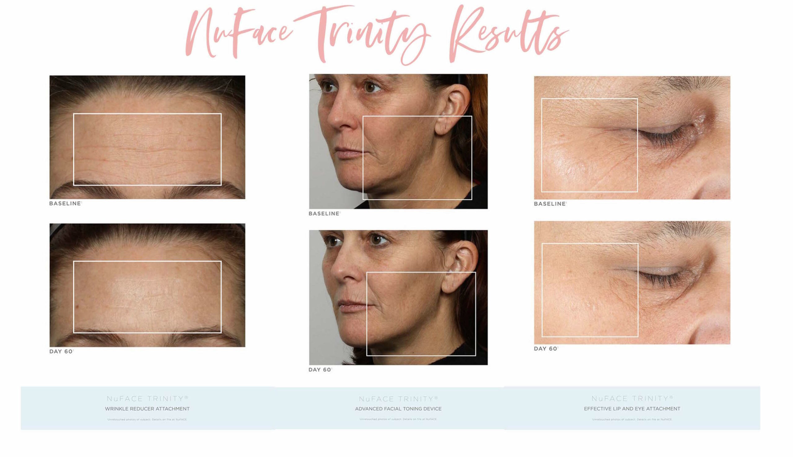 NuFace Trinity by popular Houston beauty blog, Fancy Ashley: before and after image of a woman with wrinkles.